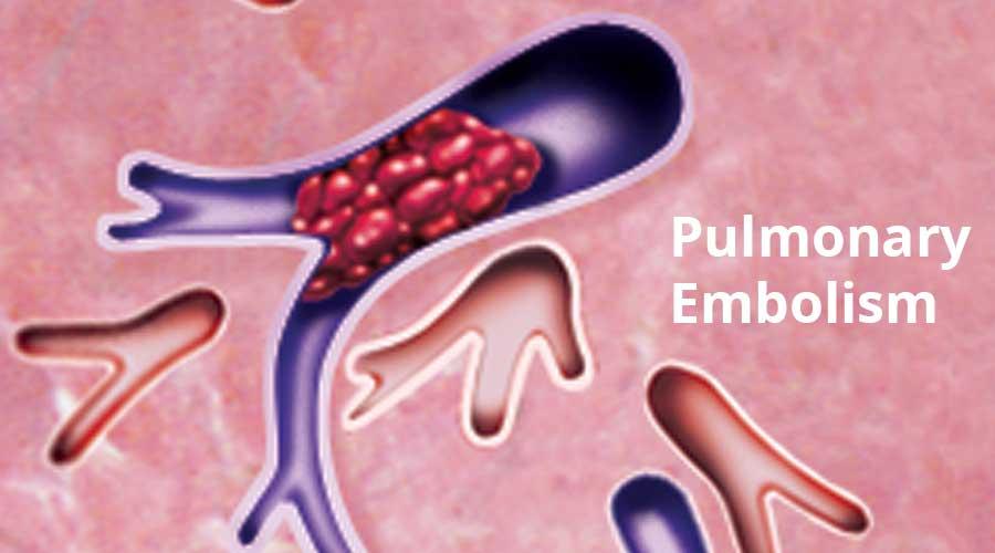 IVC-Filter-Pulmonary-Embolism